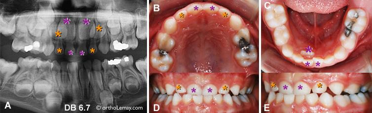 Éruption dentaire; la grosseur des dents incisives permanentes comparées aux temporaires explique pourquoi une dent définitive peut en faire tomber plusieurs dents de lait.