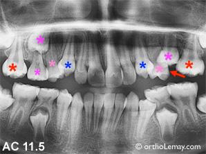Perte de dents temporaires , migration de dents et perte d'espace causant des problèmes d'éruption dentaire