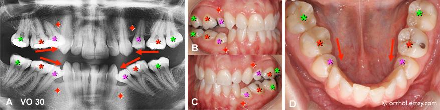 Extraction des premières prémolaires ayant causé la migration et bascule vers l'avant des autres dents postérieures. Des corrections orthodontiques peuvent redresser ces dents.