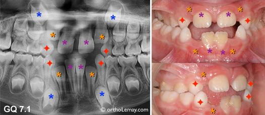 Extractions électives ou extractions pilotées en dentition temporaire pour favoriser l'éruption dentaire en présence de manque d'espace.
