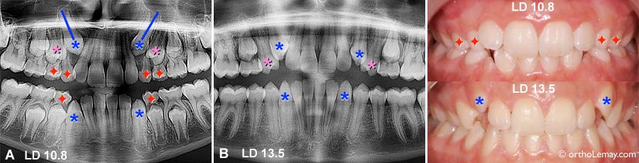 Exemple d'extraction pilotée ou extraction sélective pour aider l'éruption dentaire des canines