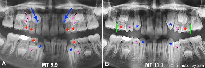 Exemples d'extractions sélectives ou d'extractions pilotées ayant permis d'influencer favorablement la direction d'éruption des dents supérieures.