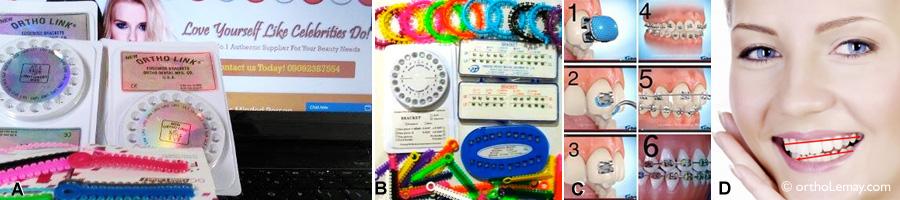 Exemples de kits d'appareils orthodontiques en vente libre sur Internet (DIY braces kit).