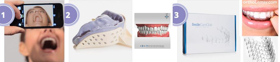 Orthodontie maison à l'aide d'aligneurs ou coquilles invisibles que vous pouvez faire vous-même.