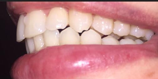 Béance postérieure crée pendant un traitement avec des aligneurs Invisalign .