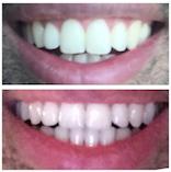 Esthétique du sourire et orthodontie