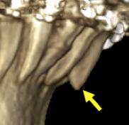 Racine d'une incisive qui sort de l'os alvéolaire lors d'un mouvement orthodontique. Besoin de torque.