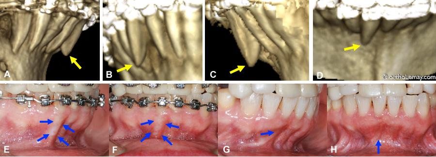 Scan 3D d'une racine sortie de l'os pendant un traitement d'orthodontie et correction subséquente.