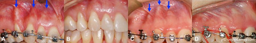 Racines basculées hors de l'os alvéolaires et corrigées en orthodontie.