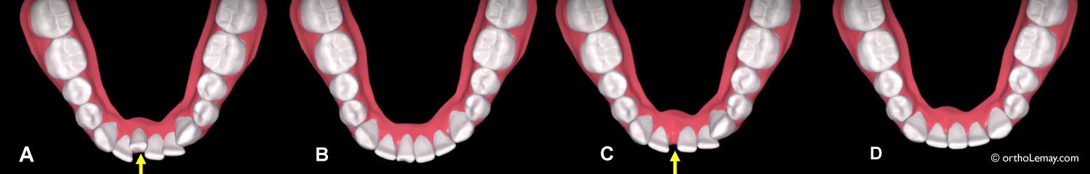 Simulation de traitement avec aligneurs ClearCorrect ou Invisalign avec l'extraction d'une incisive inférieure.