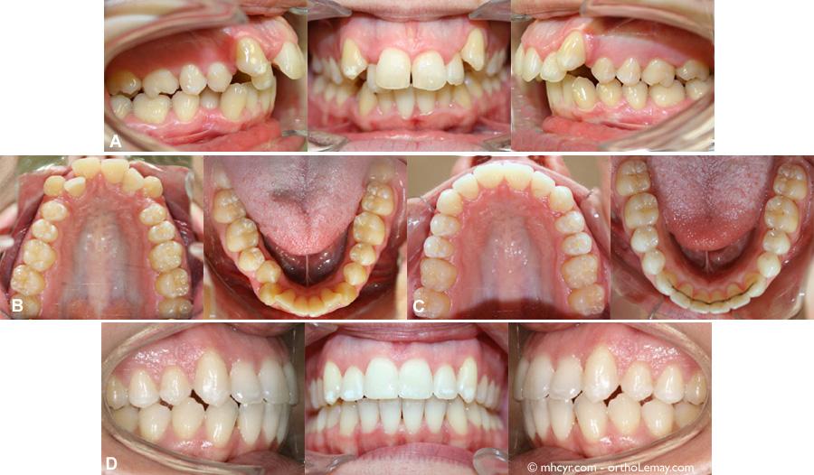 (A et B) Malocclusion et dentition avant le traitement; arcades étroites, chevauchement dentaire et manque d'espace sévères. (C) Après le traitement d'orthodontie et de chirurgie. Les arcades ont été élargies et toutes les dents sont logées dans les arcades dentaires (sans extractions)