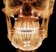 Radiographie tomodensitométrie volumique à faisceau conique (TVFC) CBCT, vis d'ancrage chirurgicale, traitement d'ortho-chirrurgie