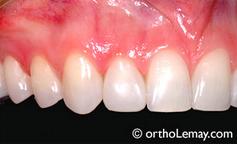 Facette sur une latérale. Prosthodontie, orthodontie.