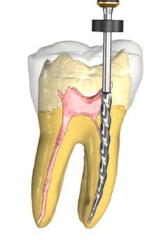 traitement de canal, endodontie, orthodontie Sherbrooke