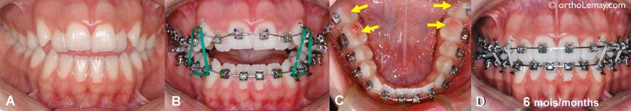 Fermeture d'une béance antérieure sans extractions ou chirurgie à l'aide de blocs d'occlusion et des élastiques verticaux.