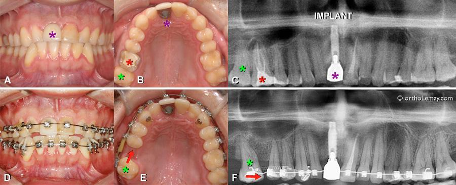 Traitement d'orthodontie avec un implant dentaire posé avant le début du traitement.