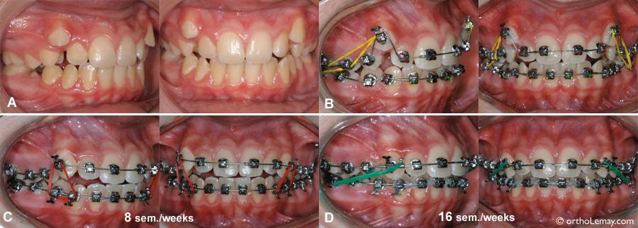 Rapidité des corrections orthodontiques dans un cas de chevauchement dentaire.