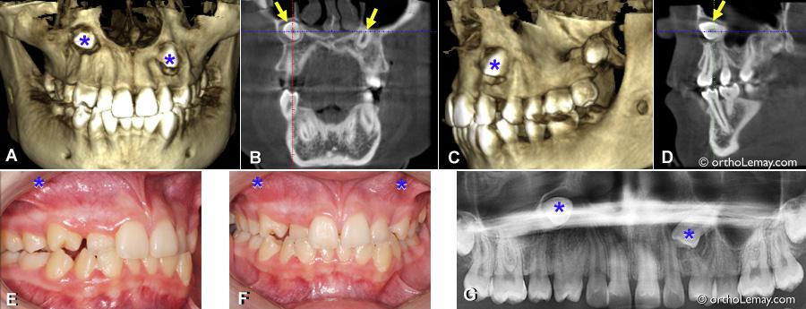 Extraction de canines sévèrement incluses en orthodontie. TVFC et radiographies indiquant la position des canines