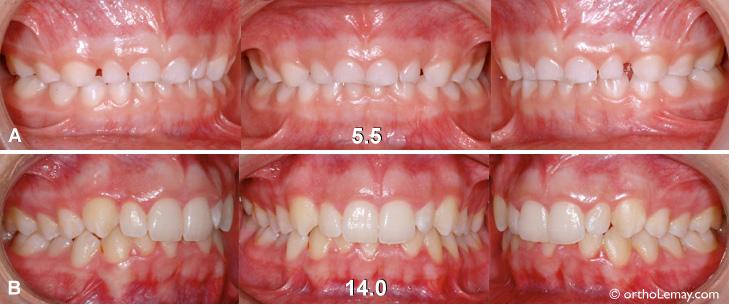 Malocclusion dentaire qui persiste malgré la croissance entre 5 et 9 ans.