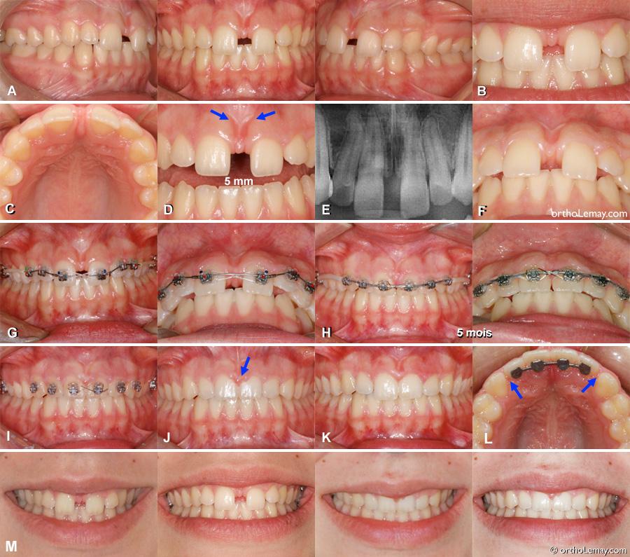 Fermeture d,un espace de 5 mm (diastème) en 5 mois