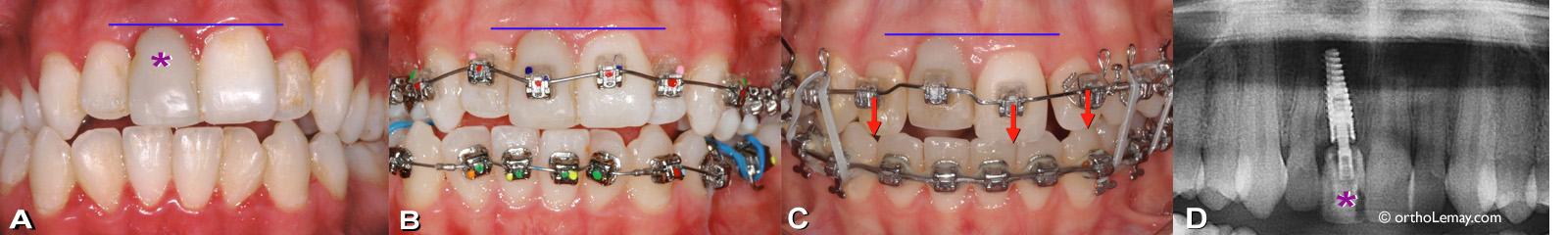 """Implant dentaire sur une incisive centrale supérieure posé avant l'orthodontie. Implant dentaire sur une incisive centrale supérieure (*) posé avant un traitement d""""orthodontie."""