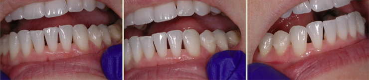 Correction de photos pour les optimiser pour le web. Orthodontiste sherbrooke, imageimage.ca