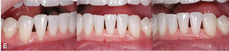 optimisation de photos pour un site web. Correction de photos pour les optimiser pour le web. Orthodontiste sherbrooke, imageimage.ca