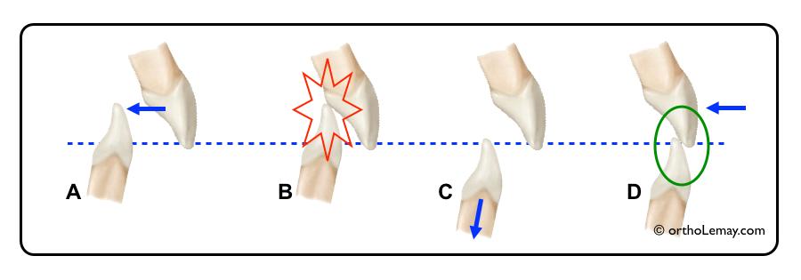La rétraction ou le recul des dents antérieures ne peut se faire sans modifier le surplomb vertical.