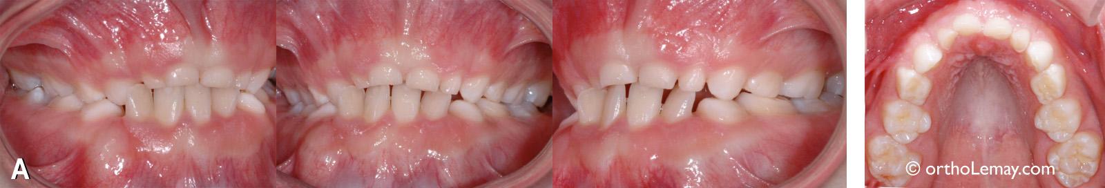 Expansion maxillaire rapide en orthodontie pour traiter l'apnée du sommeil chez un enfant.