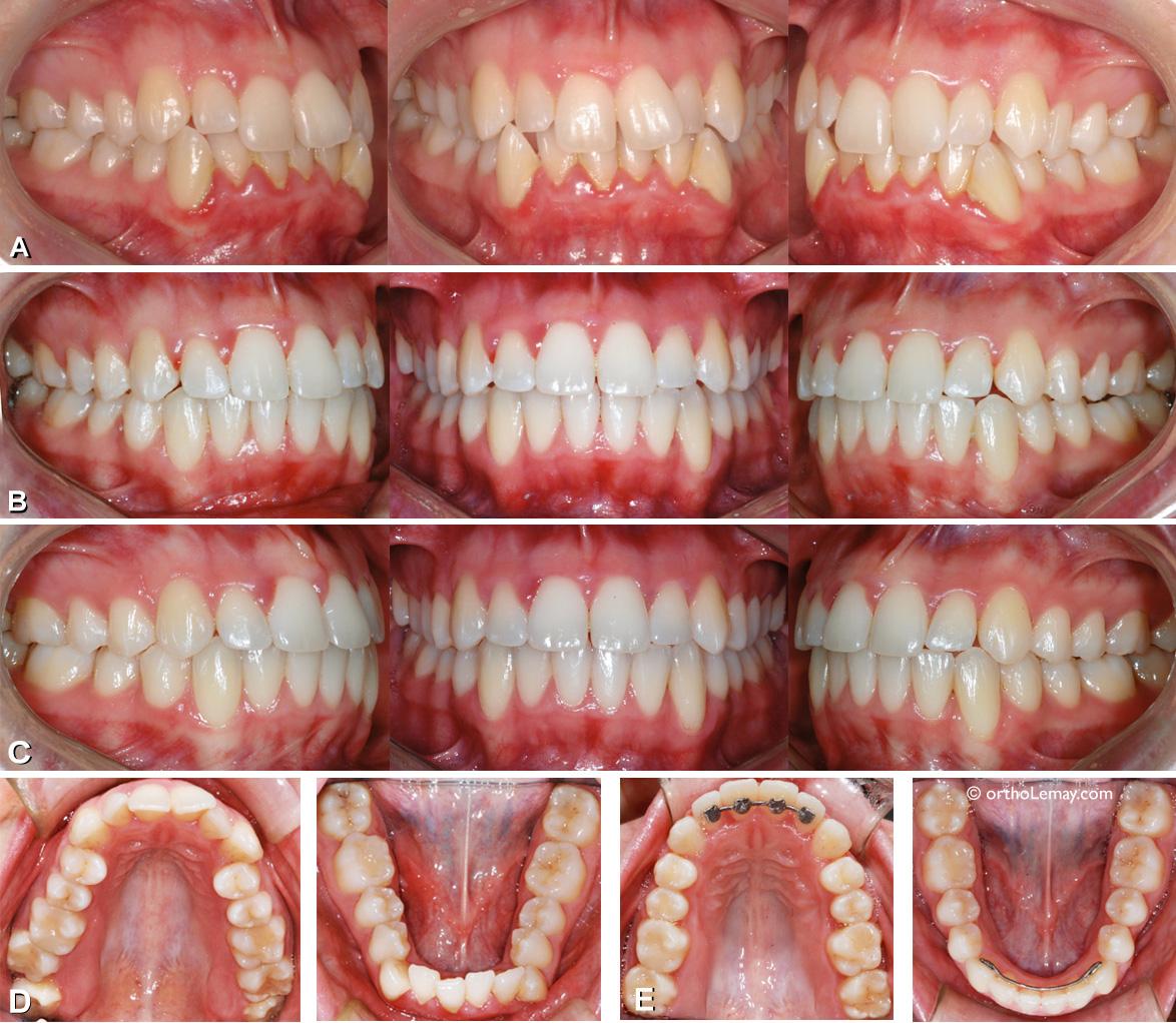 Malocclusion classe I chez une adulte avec chevauchement dentaire et arcades étroites.