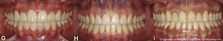 Absence d'incisives latérales : Évaluation esthétique de la fermeture ou ouverture d'espace et remplacement par un implant dentaire