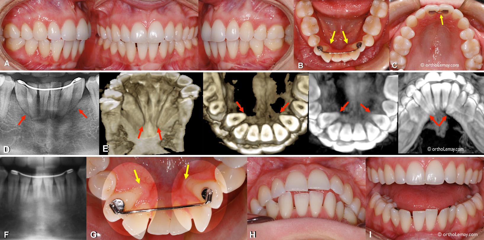 Récidive et mouvements dentaires importants malgré la présence d'un fil de rétention fixe en orthodontie.