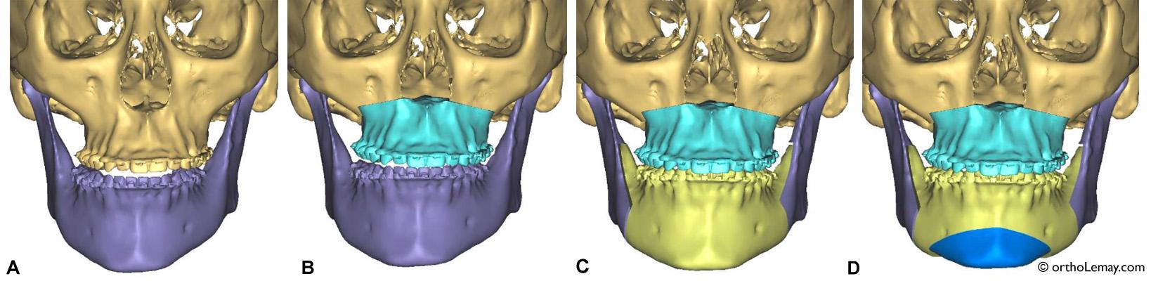 Simulation de la correction chirurgicale d'une malocclusion classe 2 ayant une béance antérieure. Simulation, gracieuseté du Dr Jean-François Aubin, chirurgien maxillo-facial, Sherbrooke. © 2016.