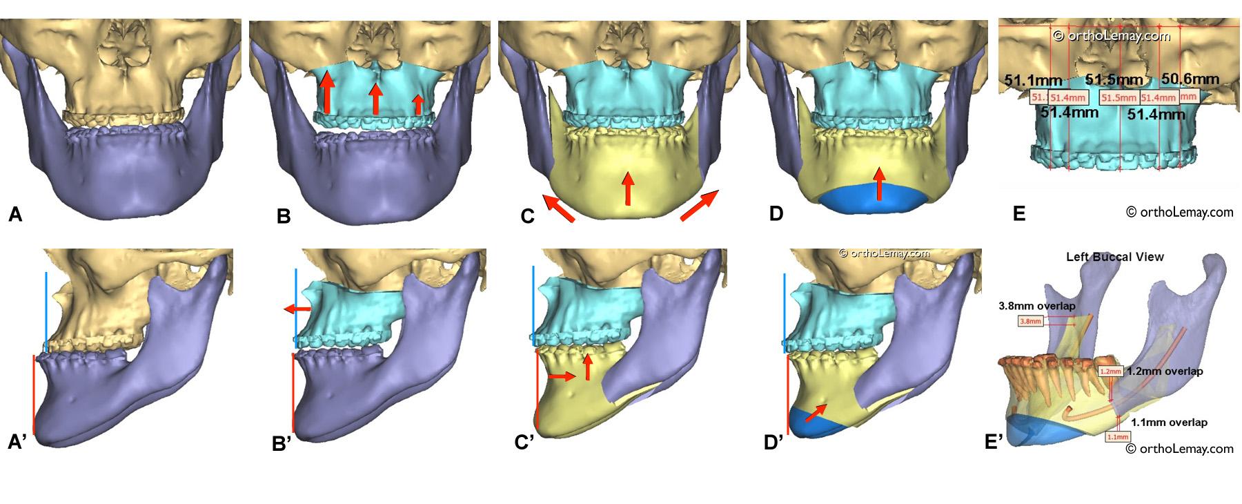 Simulation virtuelle 3D d'une correction chirurgicale d'une malocclusion classe 3.