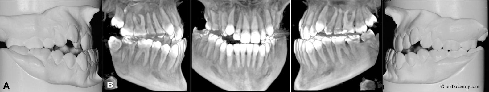 Modèles d'étude et tomodensitométrie volumique à faisceau conique (TVFC) pour une malocclusion classe 3 avec prognathie mandibulaire et déficience maxillaire qui sera traitée en ortho-chirurgie.