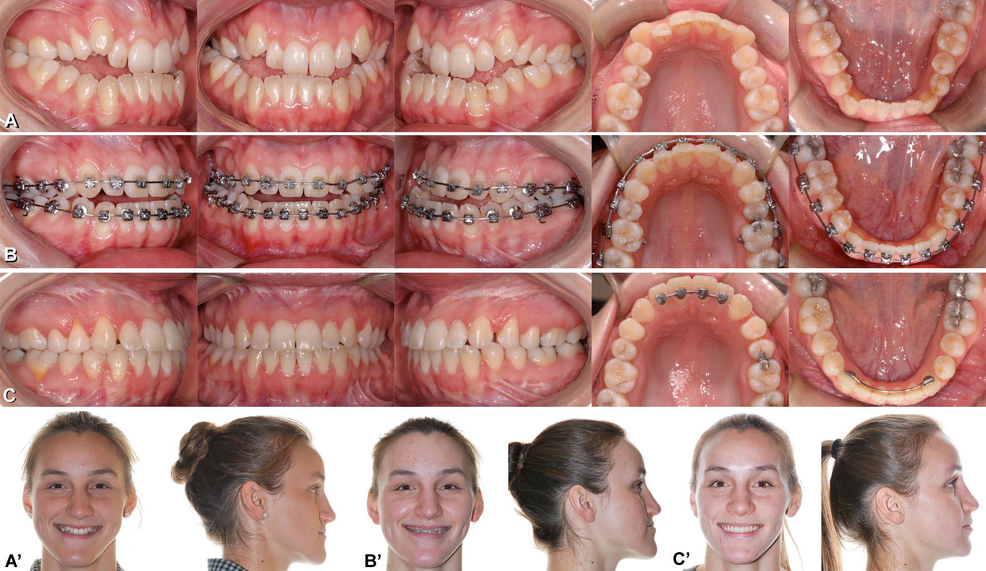 Malocclusion classe 3 III avec prognathie mandibulaire et déficience maxillaire corrigée par chirurgie orthognathique. Class 3 jaw surgery