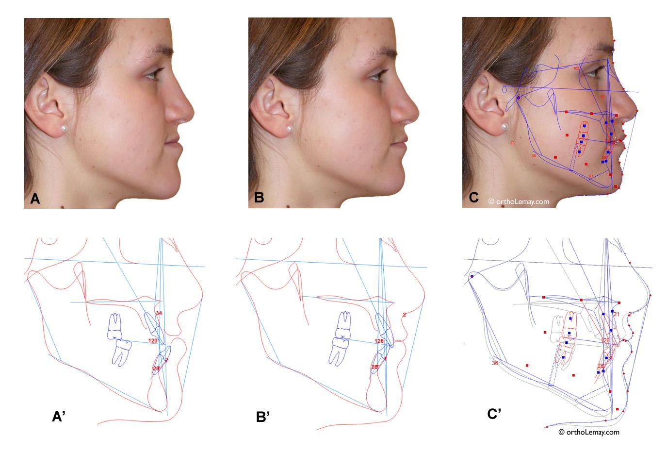 Simulation VTO (visual treatment objectives) en deux dimensions pour planifier une chirurgie orthognathique pour une malocclusion classe 3. Radiographies et photos modifiées par ordinateur