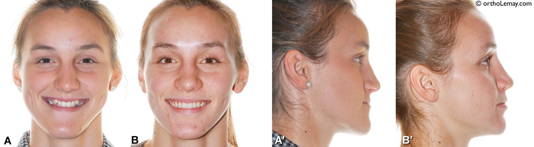 Changements esthétiques dans le profil et le visage suite à un traitement d'ortho-chirurgie incluant une chirurgie orthognathique bimaxillaire pour prognathie mandibulaire et déficience maxillaire (classe 3 - classe III).
