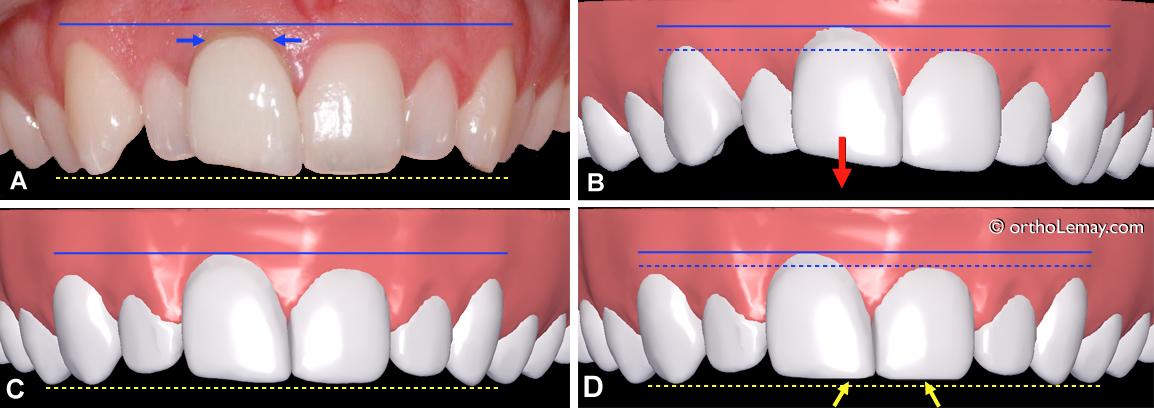 Modification du niveau gingival de deux couronnes de longueurs différentes dont une ayant une couronne prothétique en porcelaine.