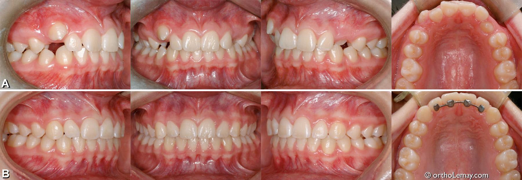 Malocclusion dentaire de type classe 1 (classe I) avec manque d'espace modéré et les canines supérieures non fonctionnelles. Corrections orthodontiques sans extractions.