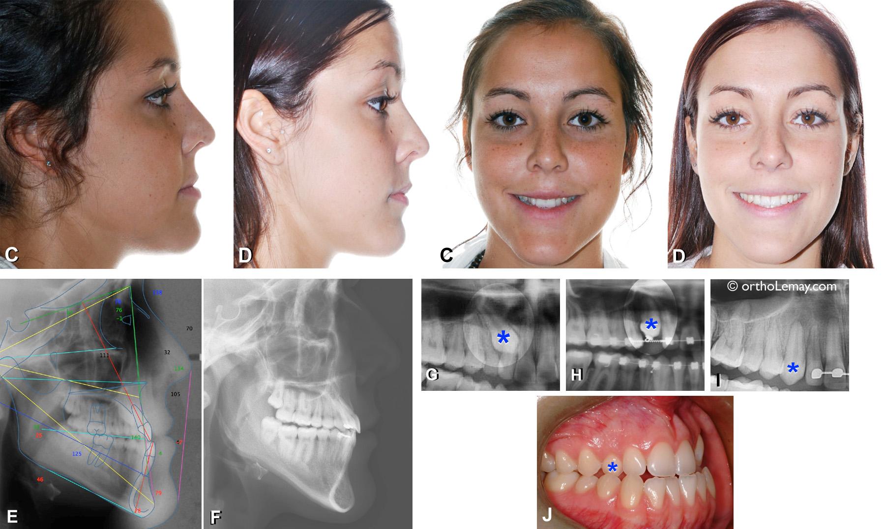 Correction d'une malocclusion dentaire classe 3 (III) avec déficience maxillaire et canine incluse