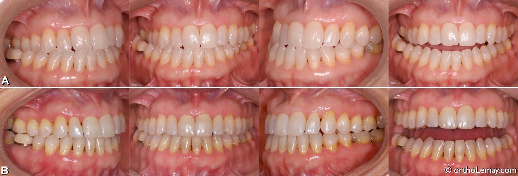 Malocclusion classe 3 traitée en orthodontie, adulte 50 ans.