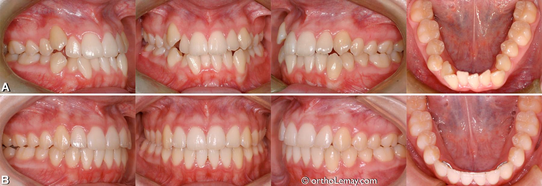 Malocclusion dentaire classe 3 avec chevauchement et manque d'espace. Adolescente de 17 ans. traitement d'orthodontie.