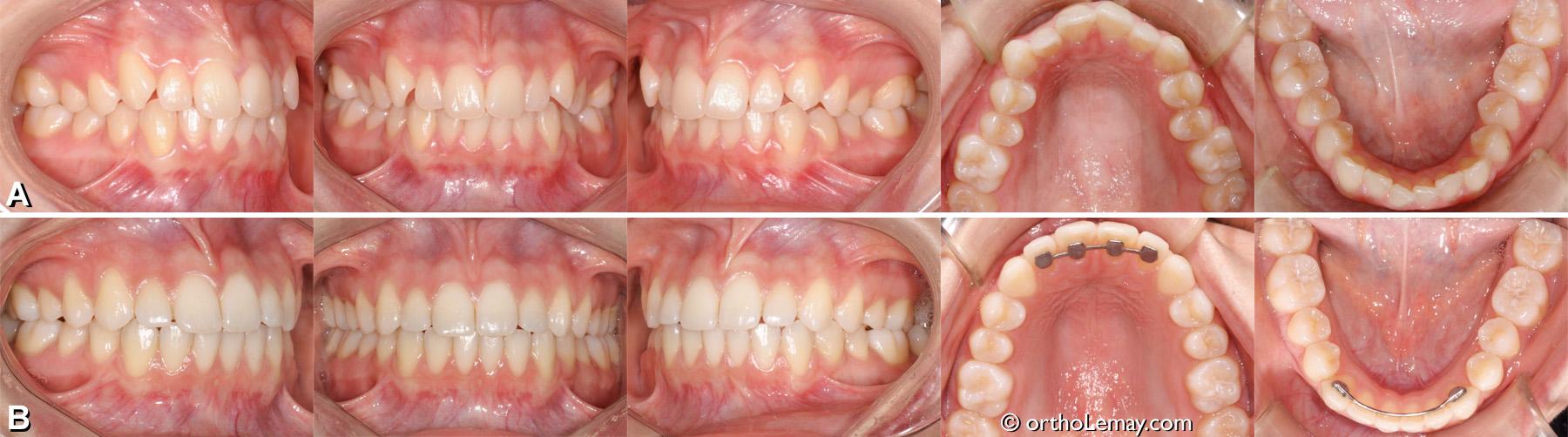 Malocclusion dentaire classe 1 arcade étroite, manque d'espace, expansion orthodontique