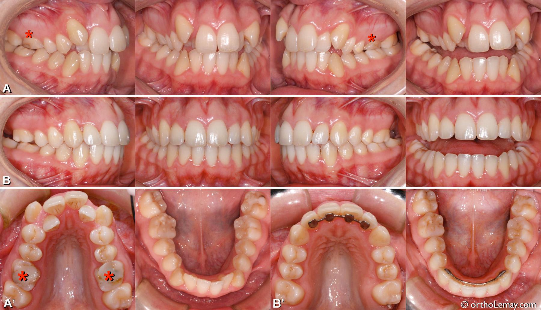Malocclusion classe 2 adulte avec chevauchement dentaire important, maxillaire étroit, occlusion croisée. Traitement d'orthodontie avec extraction des premières molaires supérieures.