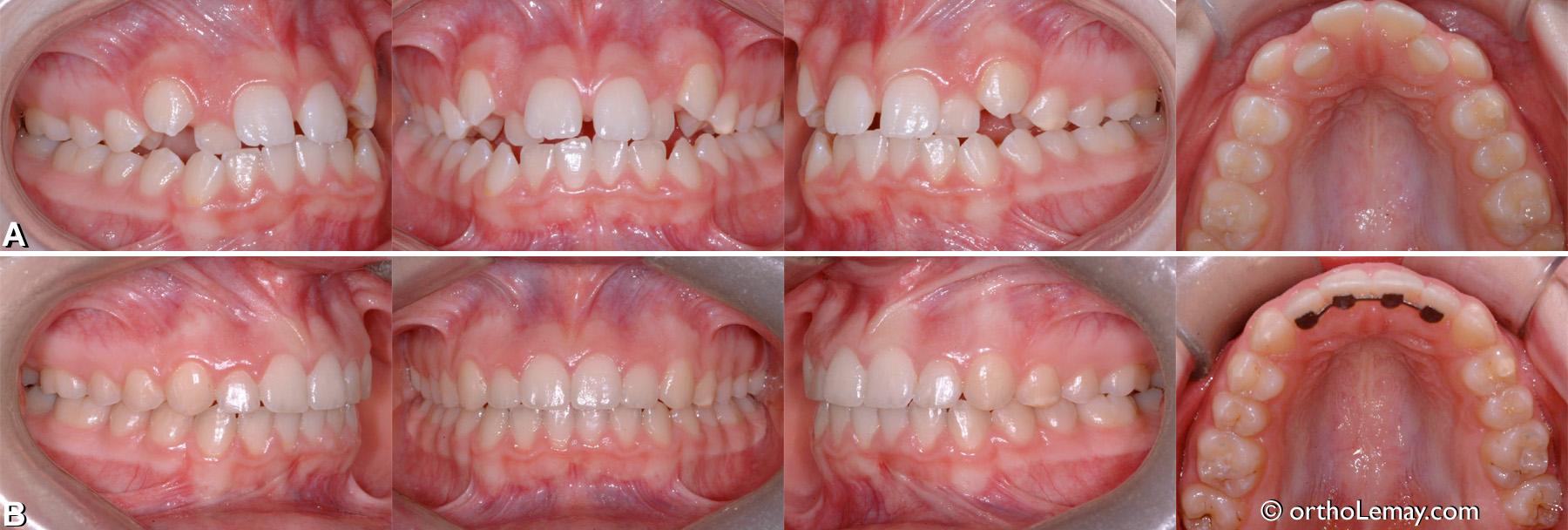 Malocclusion classe 3 (III) maxillaire etroit.