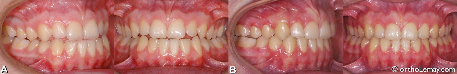Malocclusion dentaire classe 3 avec maxillaire étroit, traitée en orthodontie.