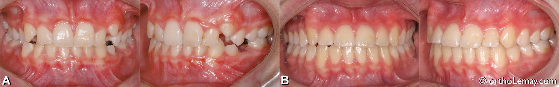 Malocclusion dentaire classe 1 avec rétroclinaison des incisives inférieures et supérieures et surplomb vertical modéré.