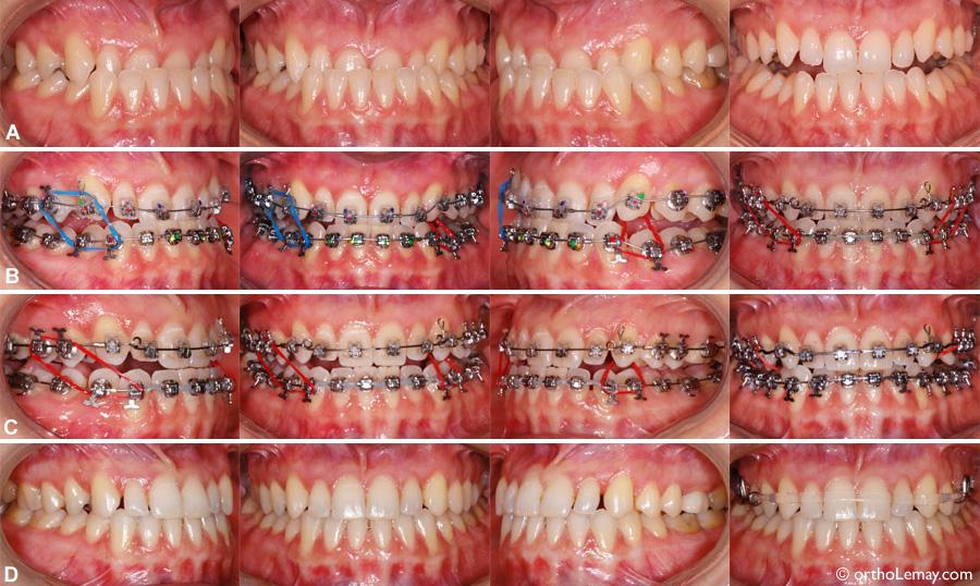 Malocclusion dentaire classe 3 avec sévère occlusion croisée antérieure
