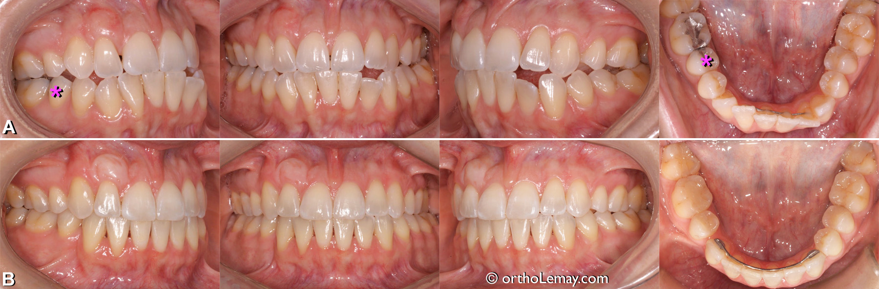 classe 3 malocclusion dentaire adulte orthodontie Sherbrooke AD41f 133084